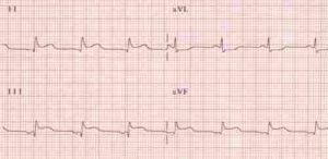 ECG showing evidence of heart disease