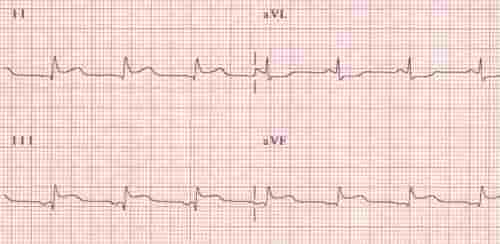 inferior MI on EKG showing ST elevation in leads II, III and aVF